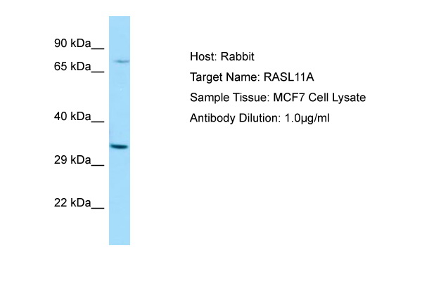 RASL11A Antibody -  This image was taken for the unconjugated form of this product. Other forms have not been tested.