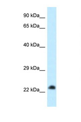 RASL11B antibody Western blot of HeLa Cell lysate. Antibody concentration 1 ug/ml.  This image was taken for the unconjugated form of this product. Other forms have not been tested.