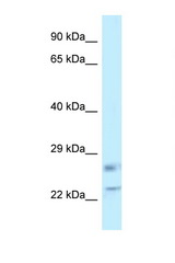RASL11B antibody Western blot of Placenta lysate. Antibody concentration 1 ug/ml.  This image was taken for the unconjugated form of this product. Other forms have not been tested.