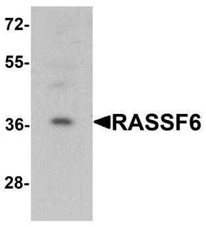 Western blot analysis of RASSF6 in 293 cell lysate with RASSF6 antibody at 1 ug/ml.