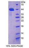 ACE2 / ACE-2 Protein - Recombinant Angiotensin I Converting Enzyme 2 By SDS-PAGE