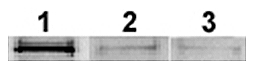 Adiponectin Protein - Effect of Adiponectin (rat) (rec.) on the phosphorylation of acetyl-CoA carboxylase (ACC) in C2C12 cells. C2C12 myocytes were treated with 25 ug/ml for 15 minutes after serum starvation for 24 hours. 100 ug per well of total cell lysate was separated on reduced SDS-PAGE gels. Immunoblot analysis was performed to measure phosphorylation of ACC with an anti-phosphoACC antibody. 1: 25 ug/ml of Adiponectin (rat) (rec.). 2: 25 ug/ml of a FLAG-tagged control protein. 3: phosphate-buffered saline.
