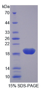 AGER / RAGE Protein - Recombinant Advanced Glycosylation End Product Specific Receptor By SDS-PAGE