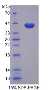 Apolipoprotein C-I Protein - Recombinant Apolipoprotein C1 By SDS-PAGE