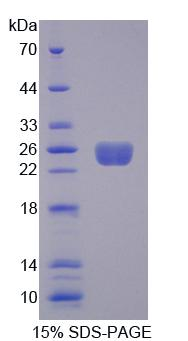 ARHGEF7 Protein - Recombinant Rho Guanine Nucleotide Exchange Factor 7 By SDS-PAGE