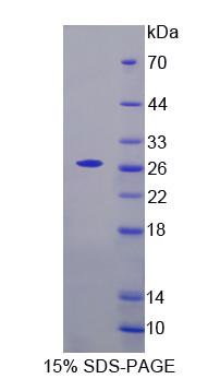 AXL Protein - Recombinant  AXL Receptor Tyrosine Kinase By SDS-PAGE