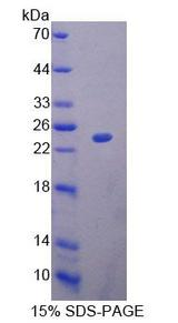 BM022 / MRPL1 Protein - Recombinant Mitochondrial Ribosomal Protein L1 By SDS-PAGE