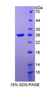 CA3 / Carbonic Anhydrase III Protein - Recombinant  Carbonic Anhydrase III, Muscle Specific By SDS-PAGE