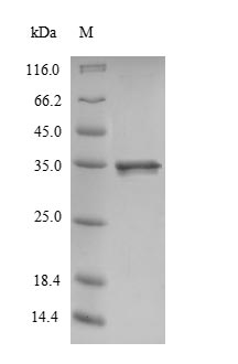 CALM1 / Calmodulin Protein - (Tris-Glycine gel) Discontinuous SDS-PAGE (reduced) with 5% enrichment gel and 15% separation gel.