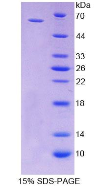 CD19 Protein - Recombinant  Cluster Of Differentiation 19 By SDS-PAGE