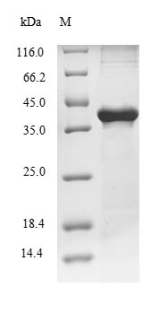 CPA1 / Carboxypeptidase A Protein - (Tris-Glycine gel) Discontinuous SDS-PAGE (reduced) with 5% enrichment gel and 15% separation gel.