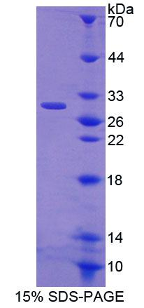 CRISP1 Protein - Recombinant Cysteine Rich Secretory Protein 1 By SDS-PAGE