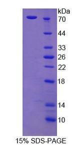 CTTN / Cortactin Protein - Recombinant  Cortactin By SDS-PAGE