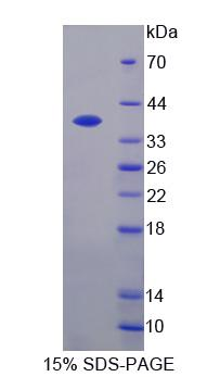 CXCL11 Protein - Recombinant  Interferon Inducible T-Cell Alpha Chemoattractant By SDS-PAGE