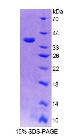 CYP17 / CYP17A1 Protein - Recombinant 17-Alpha-Hydroxylase By SDS-PAGE