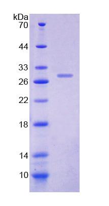 DOK1 Protein - Recombinant Docking Protein 1 By SDS-PAGE