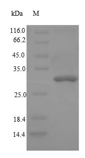 DPP4 / CD26 Protein - (Tris-Glycine gel) Discontinuous SDS-PAGE (reduced) with 5% enrichment gel and 15% separation gel.