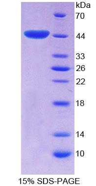 EP300 / p300 Protein - Recombinant  E1A Binding Protein P300 By SDS-PAGE
