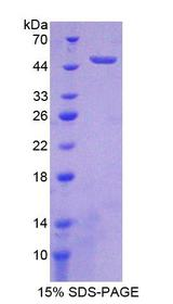FGFR1 / FGF Receptor 1 Protein - Recombinant  Fibroblast Growth Factor Receptor 1 By SDS-PAGE