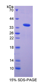 FLT1 / VEGFR1 Protein - Recombinant  Vascular Endothelial Growth Factor Receptor 1 By SDS-PAGE