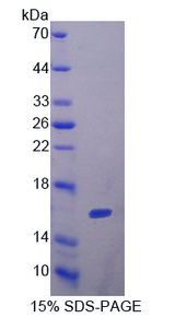FSHB / FSH Beta Protein - Recombinant  Follicle Stimulating Hormone Beta By SDS-PAGE