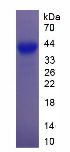 GAP43 Protein - Recombinant Growth Associated Protein 43 By SDS-PAGE
