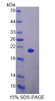 GP9 / CD42a Protein - Recombinant  Glycoprotein IX, Platelet By SDS-PAGE