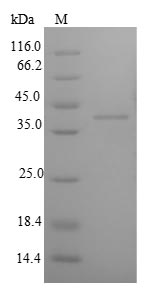 IGFBP1 Protein - (Tris-Glycine gel) Discontinuous SDS-PAGE (reduced) with 5% enrichment gel and 15% separation gel.