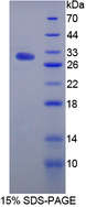 IL17RA Protein - Recombinant  Interleukin 17 Receptor A By SDS-PAGE