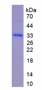 IL22RA1 / IL22R Protein - Recombinant Interleukin 22 Receptor By SDS-PAGE