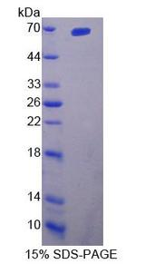 IL23R Protein - Recombinant  Interleukin 23 Receptor By SDS-PAGE