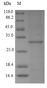 KMO Protein - (Tris-Glycine gel) Discontinuous SDS-PAGE (reduced) with 5% enrichment gel and 15% separation gel.