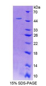 LAD1 Protein - Recombinant Ladinin 1 By SDS-PAGE