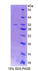 LCT / Lactase Protein - Recombinant  Lactase By SDS-PAGE