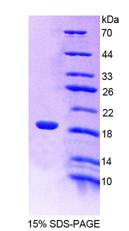 LDOC1 Protein - Recombinant  Leucine Zipper, Down Regulated In Cancer 1 By SDS-PAGE