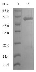 Lumican Protein - (Tris-Glycine gel) Discontinuous SDS-PAGE (reduced) with 5% enrichment gel and 15% separation gel.