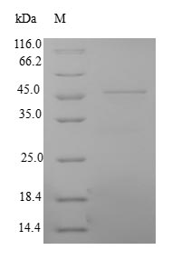 NCAM / CD56 Protein - (Tris-Glycine gel) Discontinuous SDS-PAGE (reduced) with 5% enrichment gel and 15% separation gel.