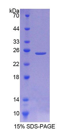 NEU2 / Sialidase 2 Protein - Recombinant  Sialidase 2, Cytosolic By SDS-PAGE