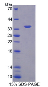 Neurochondrin Protein - Recombinant Neurochondrin By SDS-PAGE