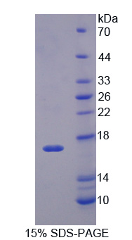 Nor-1 / NR4A3 Protein - Recombinant Neuron Derived Orphan Receptor 1 By SDS-PAGE