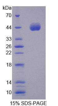 NPPA / ANP Protein - Recombinant  Atrial Natriuretic Peptide By SDS-PAGE