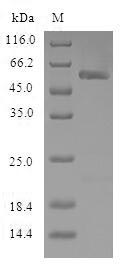 NPR3 Protein - (Tris-Glycine gel) Discontinuous SDS-PAGE (reduced) with 5% enrichment gel and 15% separation gel.
