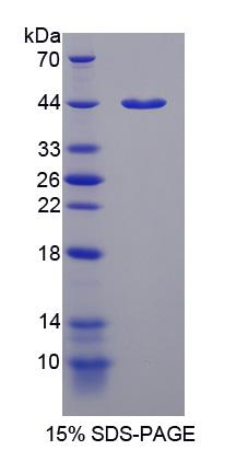 P4HA1 Protein - Recombinant Prolyl-4-Hydroxylase Alpha Polypeptide I By SDS-PAGE