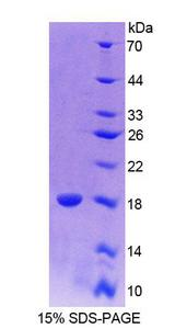 PAX6 Protein - Recombinant  Paired Box Gene 6 By SDS-PAGE