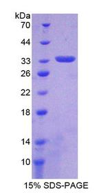 PDGF-D Protein - Recombinant  Platelet Derived Growth Factor D By SDS-PAGE