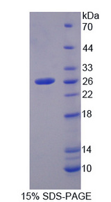 PFKP Protein - Recombinant Phosphofructokinase, Platelet By SDS-PAGE