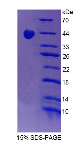 PPP1R15A / GADD34 Protein - Recombinant Protein Phosphatase 1, Regulatory Subunit 15A By SDS-PAGE