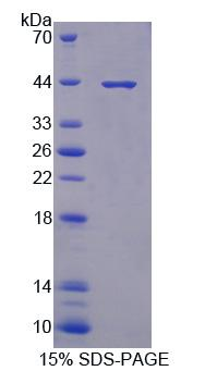 PRKX Protein - Recombinant Protein Kinase, X-Linked By SDS-PAGE