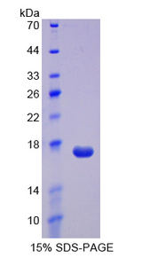 REG3A Protein - Recombinant  Regenerating Islet Derived Protein 3 Alpha By SDS-PAGE