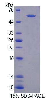 RGS6 Protein - Recombinant Regulator Of G Protein Signaling 6 By SDS-PAGE